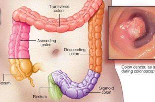 صورة اعراض سرطان القولون , اسباب وعلاج