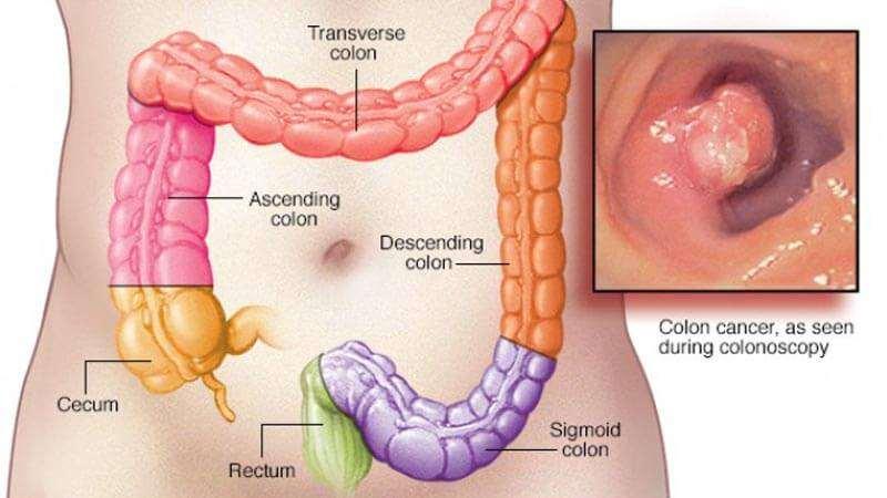 صور اعراض سرطان القولون , اسباب وعلاج
