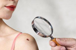 صورة اعراض سرطان الدم , المرض القاتل في الدم