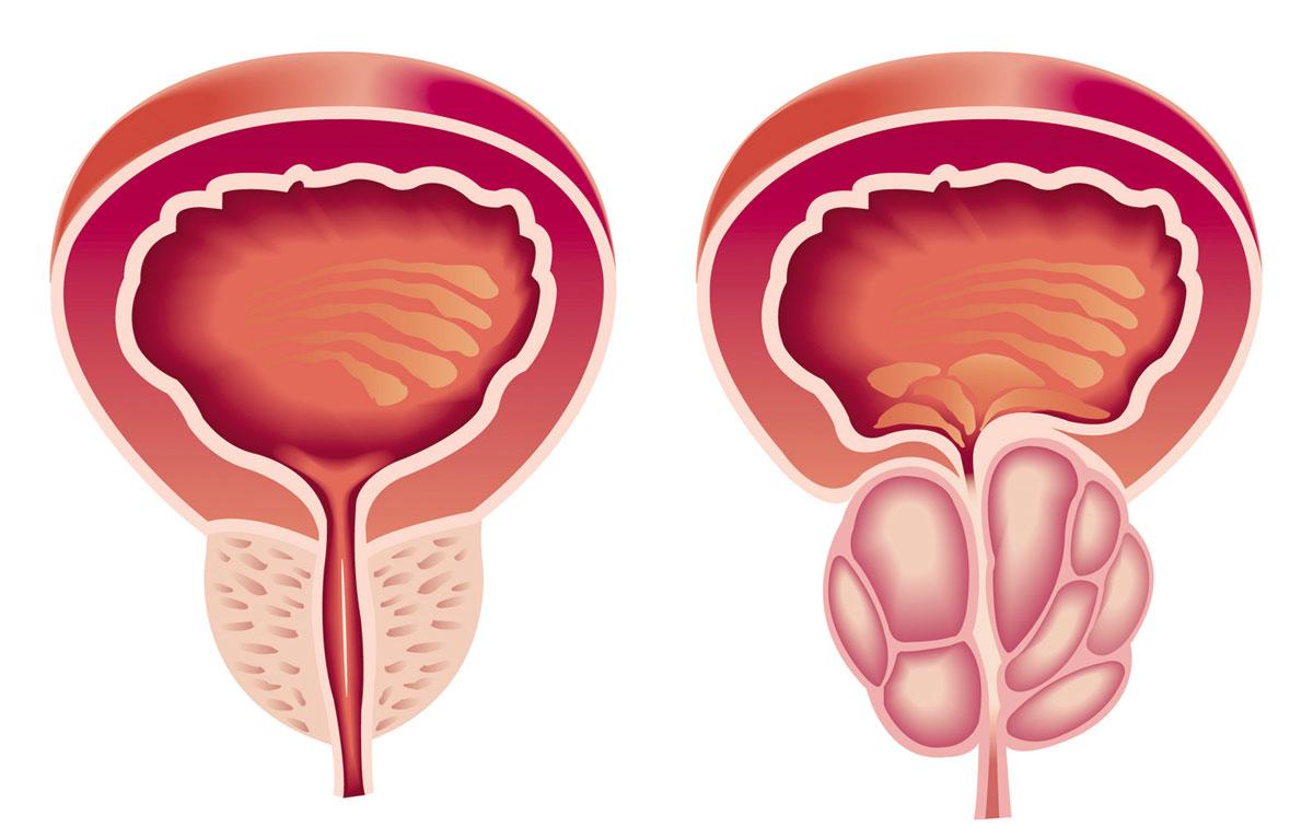 صور اسباب تضخم البروستاتا , اعراض مرض البروستاتا