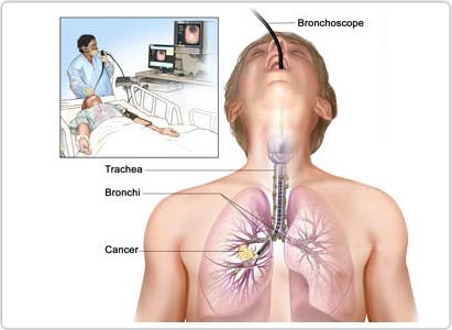 بالصور اعراض سرطان الرئة , علامات سرطان الرئه 5680 2