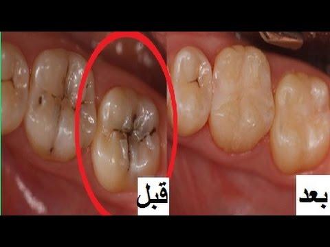 صور علاج تسوس الاسنان , كيفية التخلص من تسوس الاسنان