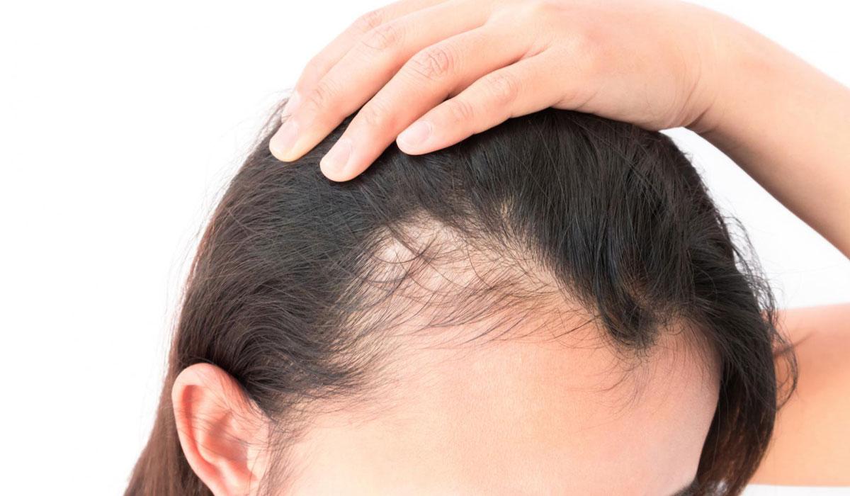 صورة علاج تساقط الشعر , احسن علاج لتساقط الشعر
