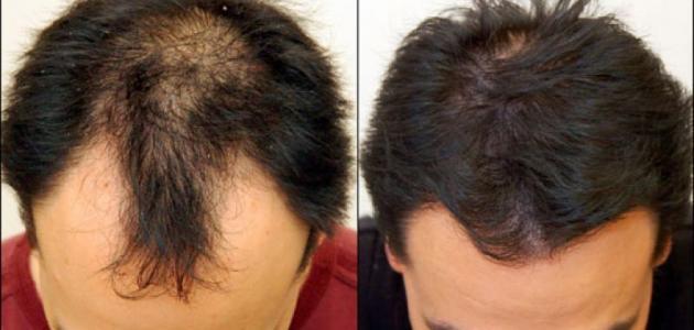 صورة علاج تساقط الشعر للرجال , طرق علاج الصلع عند الرجال