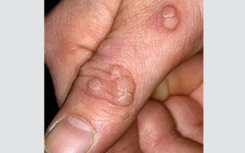 صورة علاج الثاليل , كيفية التخلص من الثاليل