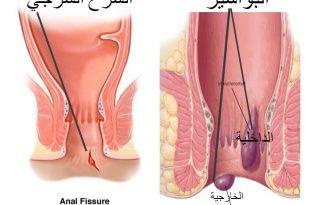 صورة اعراض البواسير , التهاب البواسير واعراضها وطرق علاجها