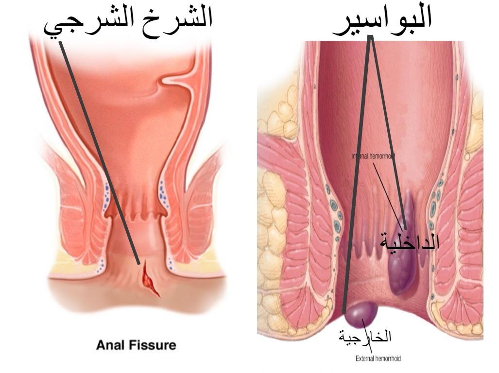 صور اعراض البواسير , التهاب البواسير واعراضها وطرق علاجها