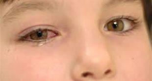 بالصور علاج الرمد , طرق علاج الرمد عند الاطفال 2278 3 310x165