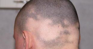 بالصور مرض الثعلبة , اسباب الاصابة بداء الثعلبة وعلاجها 2630 3 310x165
