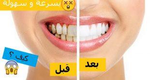 بالصور كيفية تبييض الاسنان , كيفية الحصول على اسنان ناصعة 3726 3 310x165