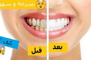 صورة كيفية تبييض الاسنان , كيفية الحصول على اسنان ناصعة