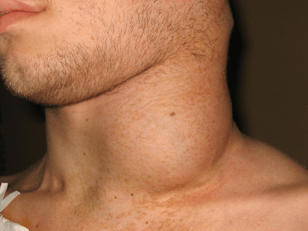 بالصور الغدد الليمفاوية بالصور , معرفه اعراض الغدد الليمفاوية 11286