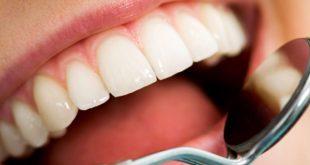 بالصور علاج تسوس الاسنان في المنزل , اسهل علاج لتسوس الاسنان 11386 13 310x165