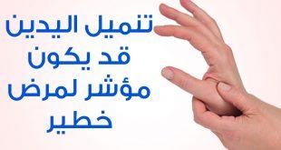 صورة اسباب انتفاخ اليدين , اعراض وطرق علاج انتفاخ الايدي