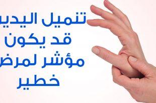 بالصور اسباب انتفاخ اليدين , اعراض وطرق علاج انتفاخ الايدي 11796 2 310x205