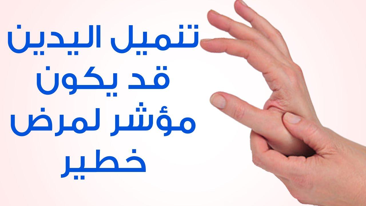صور اسباب انتفاخ اليدين , اعراض وطرق علاج انتفاخ الايدي