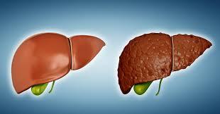 صورة اعراض تشمع الكبد , تشمع الكبد اصبح خطرا