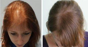 صور طريقة تقوية الشعر , قوي شعرك باسهل الطرق