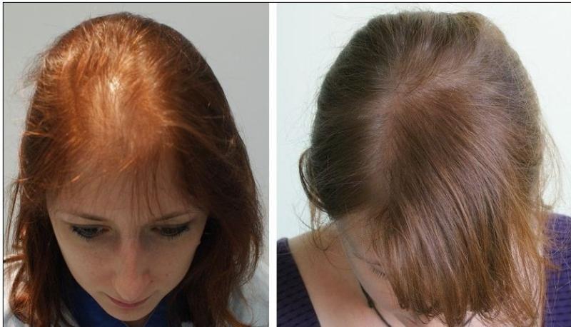 صورة طريقة تقوية الشعر , قوي شعرك باسهل الطرق