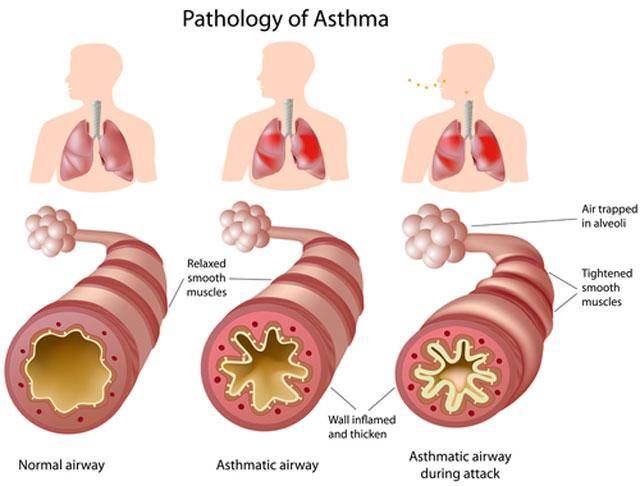 صورة علاج التهاب الصدرية عند الكبار , التهاب الصدر خطر يهدد كبار السن