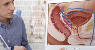 بالصور سرطان البروستاتا المنتشر , امراض العصر الخفية 11675 13 310x165