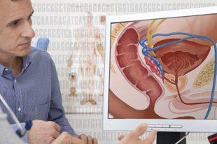 صورة سرطان البروستاتا المنتشر , امراض العصر الخفية
