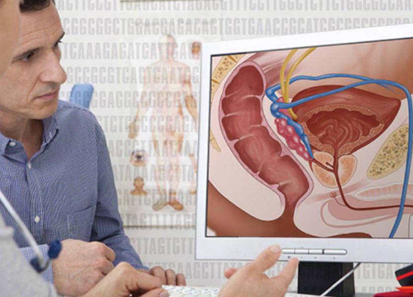 صور سرطان البروستاتا المنتشر , امراض العصر الخفية