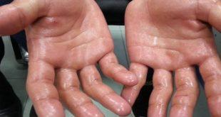 صورة علاج تعرق اليدين , عرق اليدين يسبب الارق