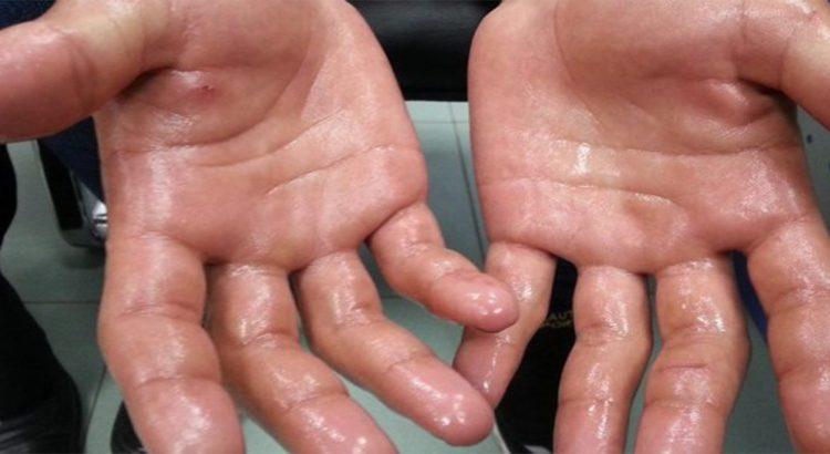 صور علاج تعرق اليدين , عرق اليدين يسبب الارق