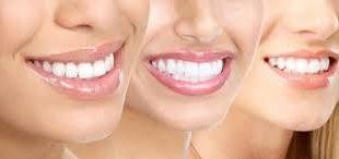 صور تبييض الاسنان في البيت , وصفة اسنانك لبياض ناصع