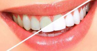 صورة وصفة سريعة لتبييض الاسنان , الاهتمام بالاسنان و تبيضها