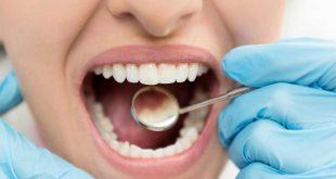 صورة ماهو علاج تسوس الاسنان , افضل الطرق لمعالجه تسوس الاسنان