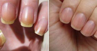 صورة علاج اصفرار الاظافر , اهمية العناية بالاظافر