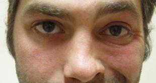 صورة شلل نصف الوجه , التهاب العصب السابع
