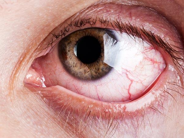 صورة ما سبب دموع العين بدون سبب , سقوط الدموع من العين باستمرار