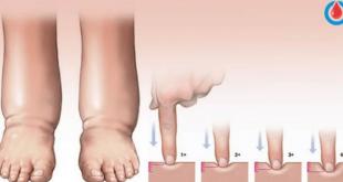 صورة علاج احتباس الماء في الجسم , علاجات طبيعيه