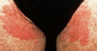 صورة الفطريات الجلدية بين الفخذين , علاج الالتهاب بين الفخذين