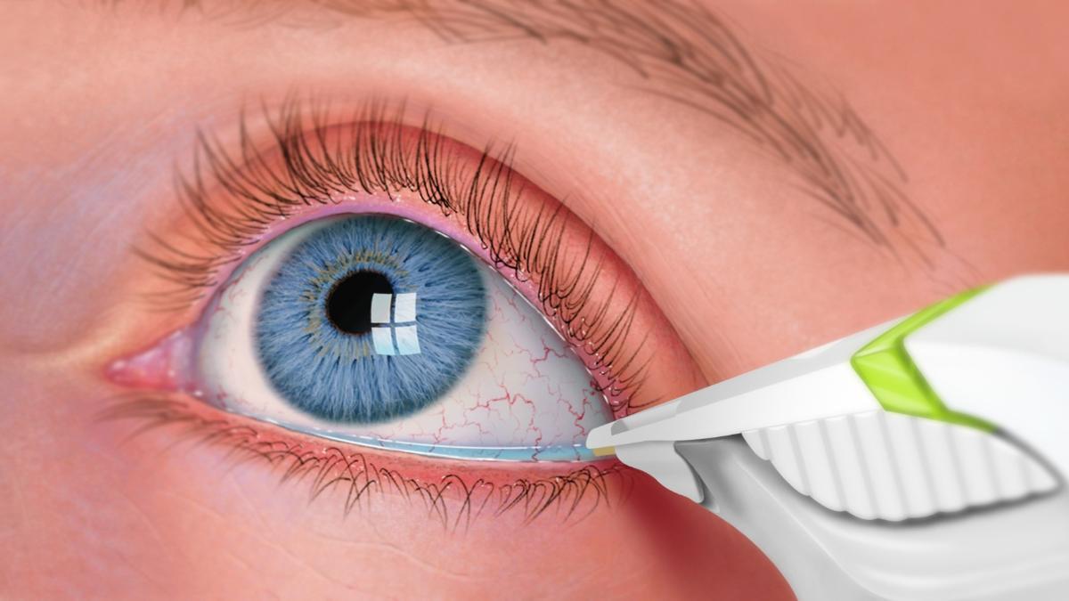 صورة اعراض جفاف العين وعلاجه , جفاف العين الاسباب وطرق العلاج