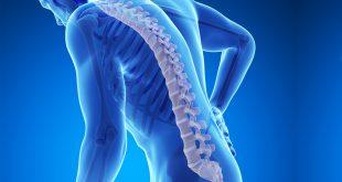 صورة ما هي هشاشة العظام , اعراض هشاشة العظام