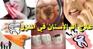 صورة التخلص من الام الاسنان , حلول سحريه لتسكين الام الاسنان