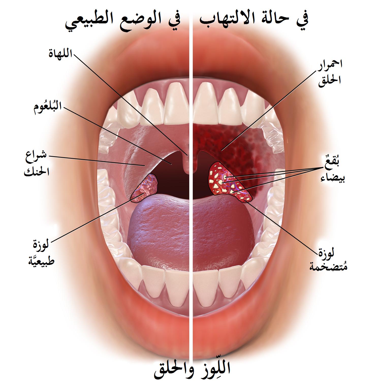 صورة علاج التهاب الحلق , افضل العلاجات الدوائية والمنزلية لالتهاب الحلق