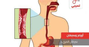 صورة اعراض سرطان المريء , معلومات تهمك جدا عن سرطان المرئ