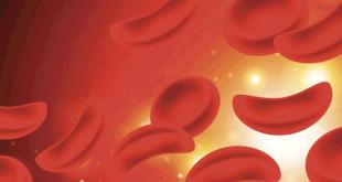 صورة اعراض فقر الدم ,تعرف على اسباب حدوث الانيميا