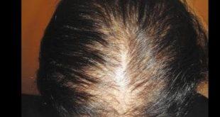 صورة تكثيف الشعر الخفيف , خلطة جامدة جدا للشعر تعالي وشوفي 🙈