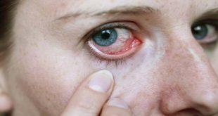 صورة علاج حساسية العين , تعرف على كيفية علاج حساسية العيون