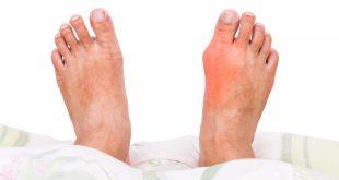 صورة مرض النقرس , مسببات وعلاج مرض التهاب المفاصل