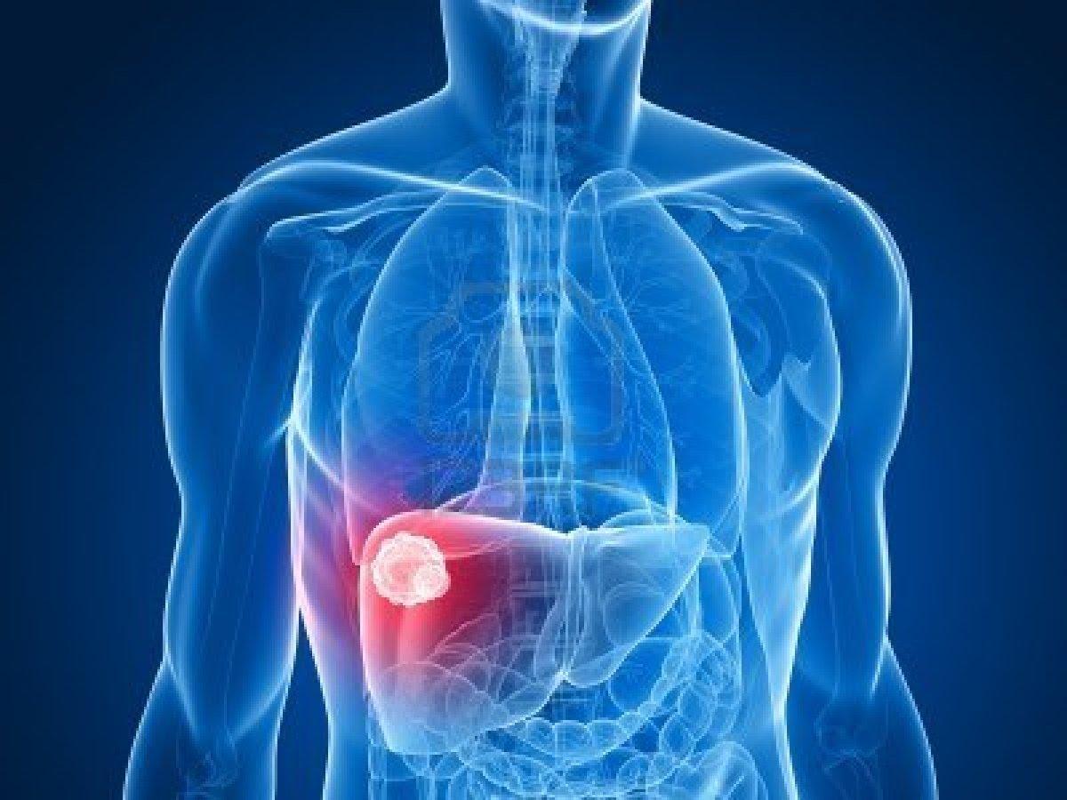 صورة مرض البلهارسيا , معلومات تفيدك عن مرض بلهارسيا