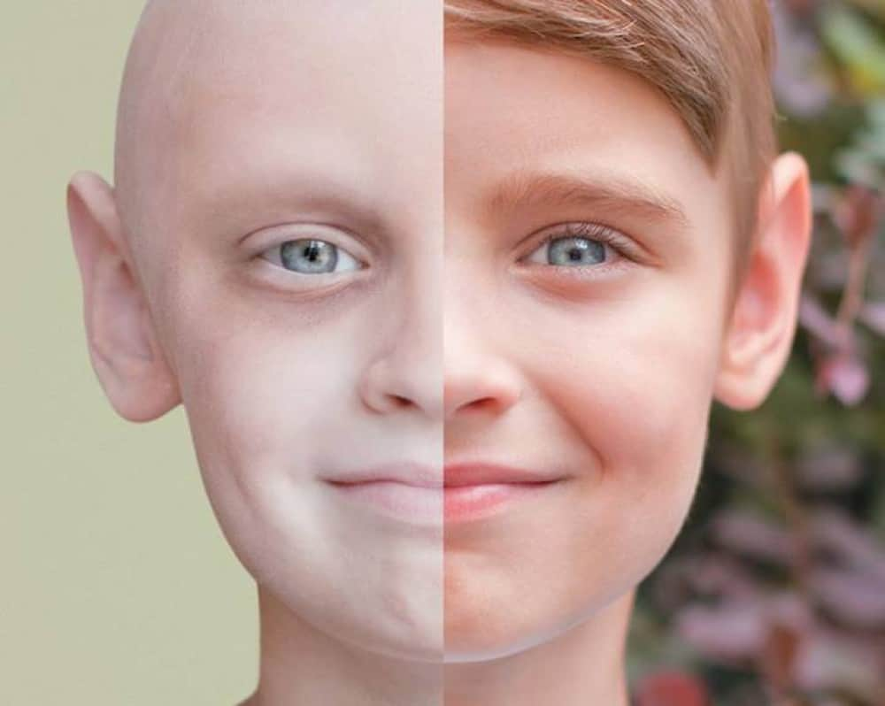 صورة اخطر انواع السرطان ,تعرف على امراض السرطانات المميتة