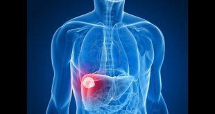 صورة اعراض مرض الكبد , تعرف على بودار اعراض مرض الكبد