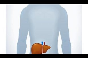 صورة طرق علاج مرضى تليف الكبد,علاج تليف الكبد